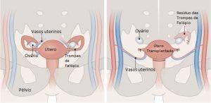 útero transplantado